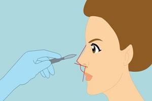 假体隆鼻真的安全吗