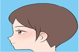 注射隆鼻的优势有哪些