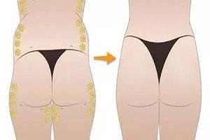 臀部吸脂术后要注意什么