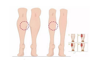 瘦腿的注意事项有哪些