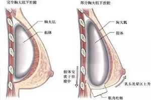 假体隆胸后能保持多少年呢