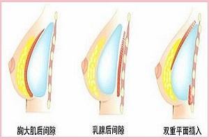 假体隆胸术后胸部的手感怎样