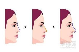 隆鼻整形手术后的护理要点