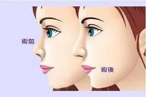 玻尿酸隆鼻效果不理想怎么办