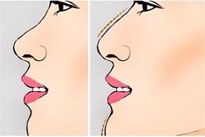 隆鼻手术需要多久才能好呢