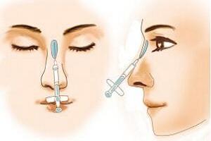 隆鼻用的是什么