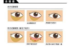 为什么许多年轻人都有眼袋呢