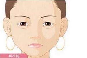 割双眼皮恢复时间需要多长