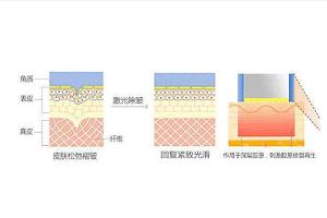 激光除皱有哪几种方法呢