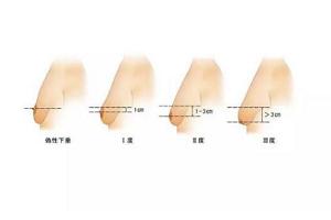 乳房下垂矫正的方法