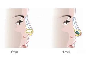鼻小柱整形的优点