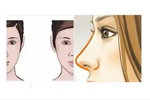 什么是鼻小柱整形