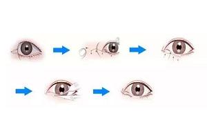开外眼角手术的恢复时间