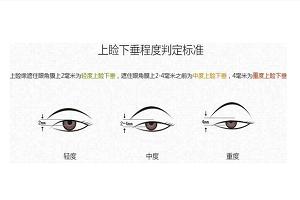 上海眼睑下垂矫正的效果