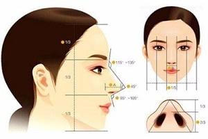 鼻小柱整形的术前术后注意事项