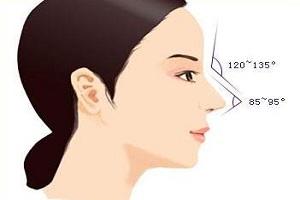 鼻小柱延长术要多少钱