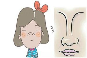 鼻综合手术后多久才会恢复呢