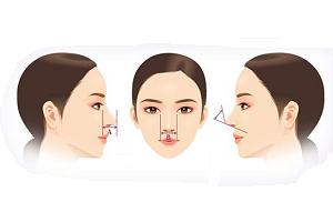 鼻部综合术需要多少钱