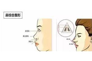 鼻部综合整形有哪些优点
