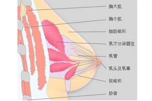 隆胸假体取出后的注意事项是什么