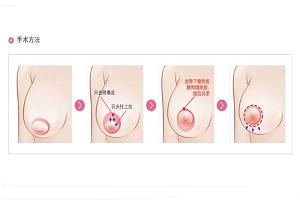乳房下垂矫正术的优势有哪些