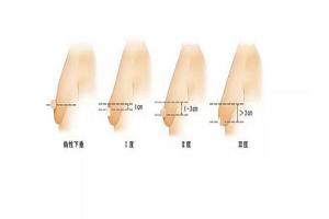 乳房下垂矫正术有哪些适应症