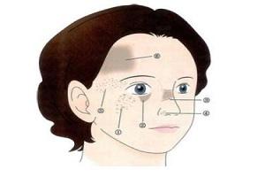 激光去除太田痣是否存在副作用呢