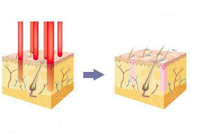 激光去红血丝的效果怎么样