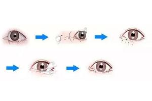 开外眼角手术后会不会出现后遗症