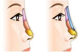 假体隆鼻手术多少钱