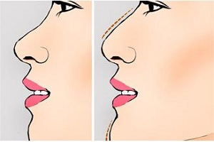 假体隆鼻手术该注意些什么呢