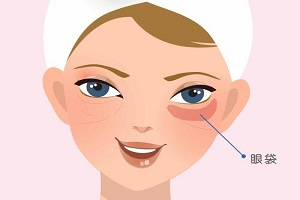 去眼袋手术的后遗症该如何避免呢