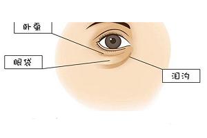 祛眼袋技术不过关会造成什么后果呢