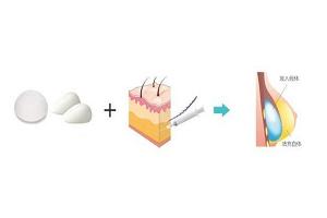 假体隆胸术的方法是什么