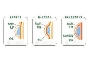 假体隆胸的位置该怎么选择