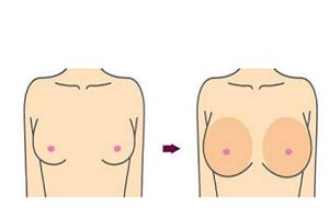 隆胸选择假体好还是自体好呢