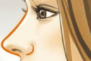 隆鼻术后不理想有哪些原因