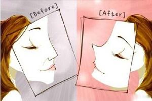 隆鼻手术的效果有哪些