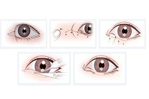 开眼角手术会不会有什么危害呢