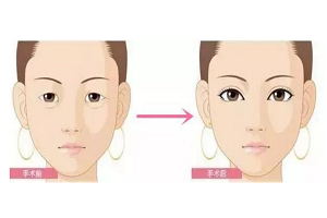 开眼角手术的效果怎么样