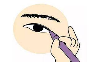 开眼角手术后会有疤痕吗